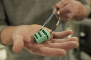 The UW-Madison researchers developed a wearable device (pictured) that enabled them to noninvasively measure forces on the Achilles tendon, as well as the patellar and hamstring tendons. Photo: Renee Meiller.